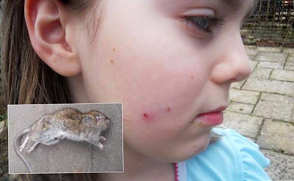 Une fille attaquée par un rat.